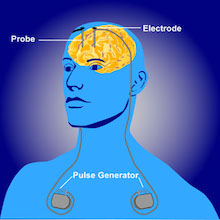Deep_brain_stimulation