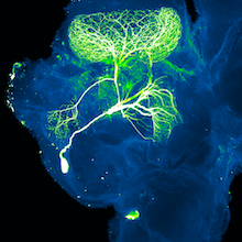 microscopic image of brain cells